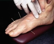 Acupuncture treats the complications of diabetes